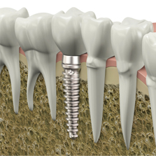 goedkoop implantaat kies
